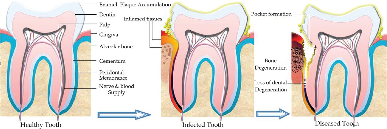 Anatomy of healthy, infected and diseased tooth