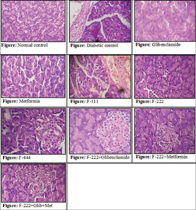 Histopathological representation of pancreas in streptozotocin‑induced diabetes in rats treated with various formulations (H and E, ×40) (Reproduction size: at column width)
