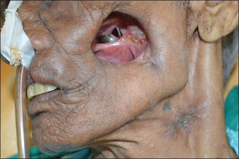 Orofacial defect and structures