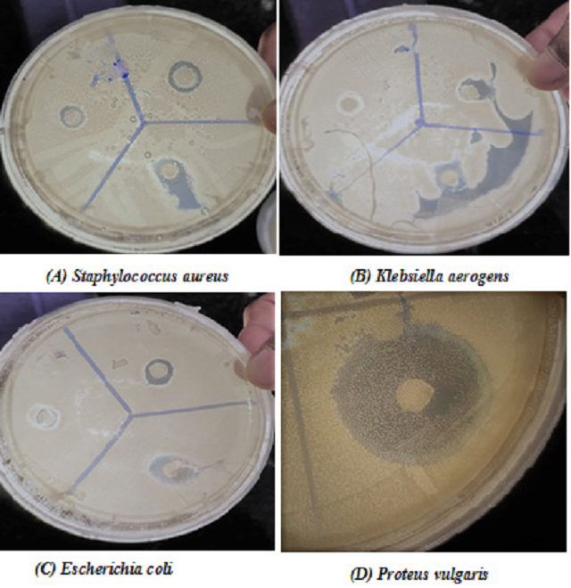 Figure 1: Antimicrobial activity of H. fomes of acetone plant extract